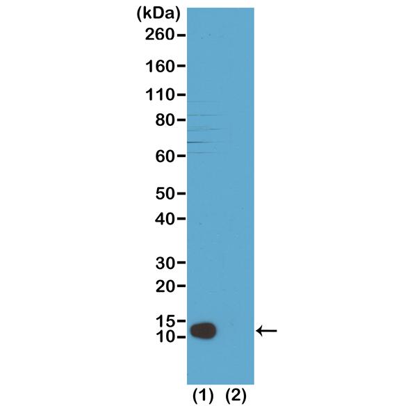 Fig 2_RM208_H4K20m3_e