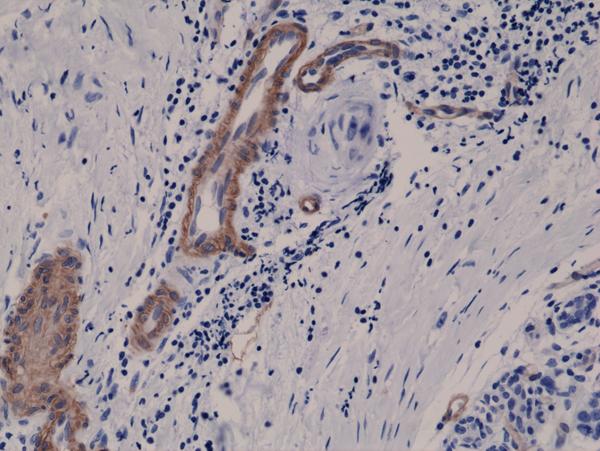 fig1_CD146