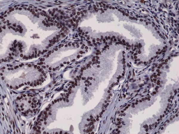 Fig1_prostate cancer_ARNT_E
