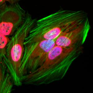 Immunocytochemical