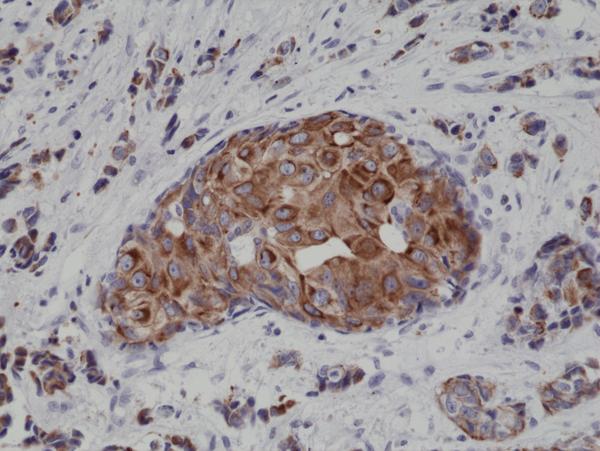 Fig1_CK18_IHC