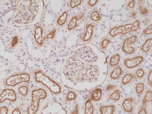 Fig1_IHC_CD10_E