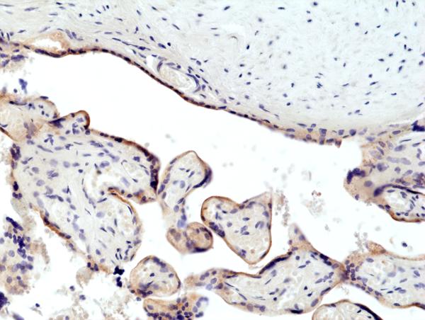 CD71_IHC-Placenta