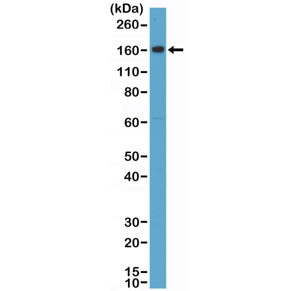 Anti-CD163 Rabbit Monoclonal Antibody, Clone RM371 (N-Terminus)