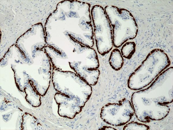 Fig4_IHC_CK5-RM226_Prostate